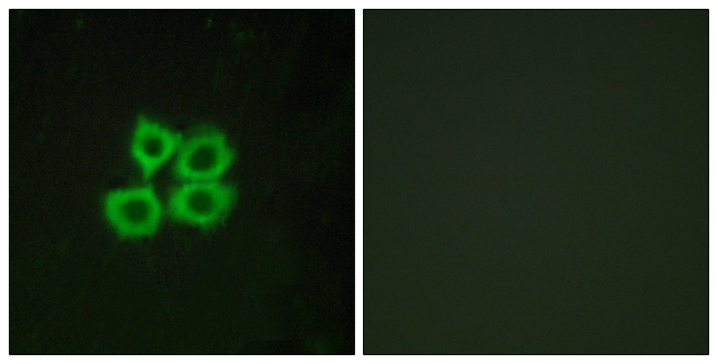 CRHR2 Antibody (OAAF04787) in MCF-7 cells using Immunofluorescence